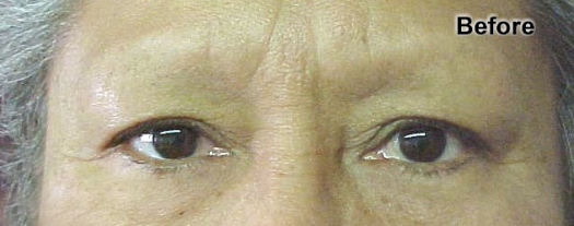 permanent_makeup_eyebrows_2_before